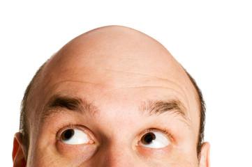 はげる人には特徴がある!?薄毛の原因とおススメの薄毛対策4選!